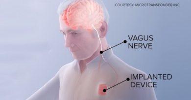 Научници создадоа имплант за закрепнување од мозочен удар (ВИДЕО)