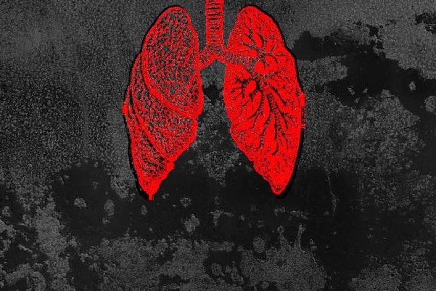 Еден знак на вашето лице кој сигурно го занемарувате може да биде симптом за рак на белите дробови