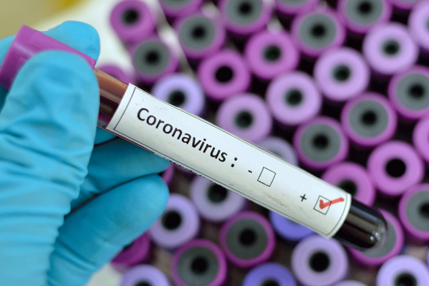 Летните температури тешко ќе го спречат ширењето на коронавирусот