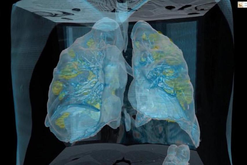 Погледнете како изгледаат белите дробови на заразен пациент од коронавирус (ВИДЕО)
