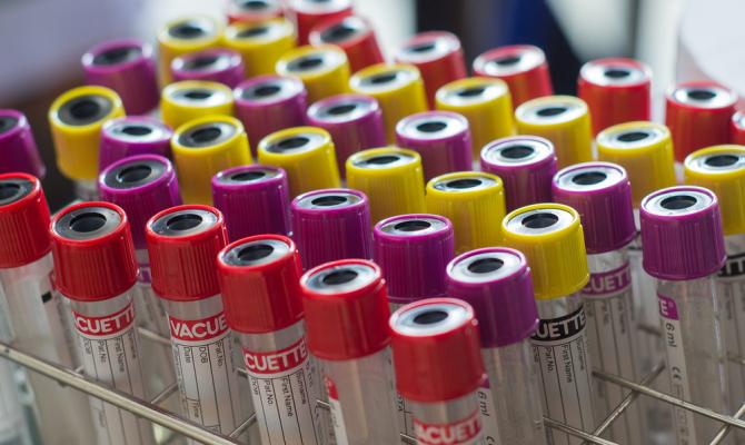 Научниците открија која крвна група штити од коронавирус