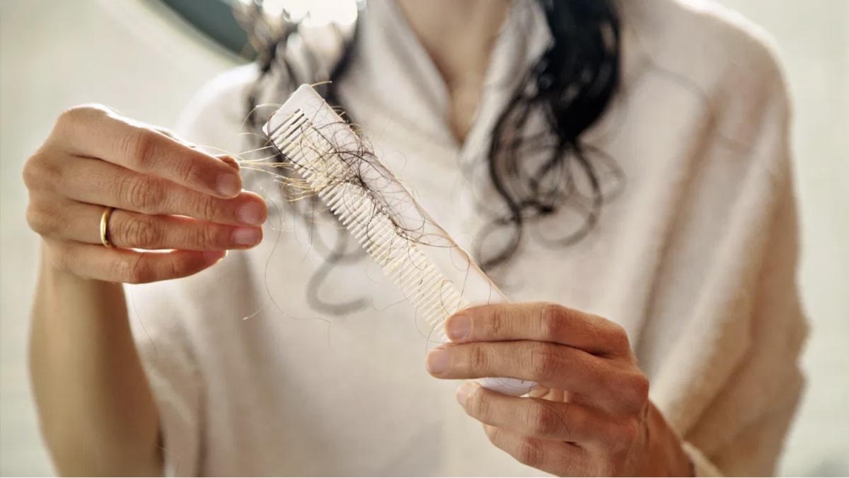 Истражување: Луѓето кои прележале Ковид-19 се соочуваат и со опаѓање на косата