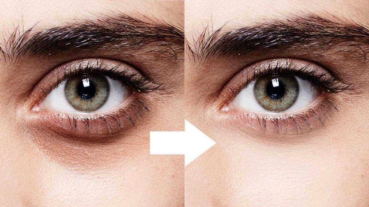 Овие промени на лицето можат да укажат на сериозни заболувања