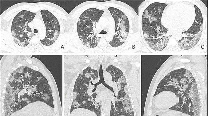 Грчки пулмолог објавил шокантни снимки од белите дробови на малолетници со Ковид-19